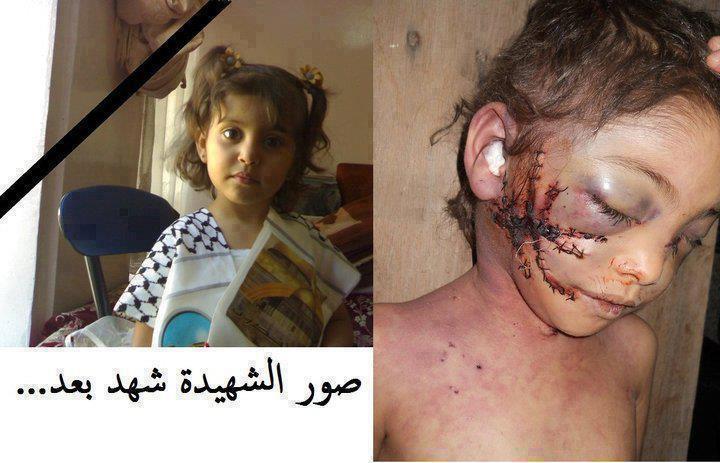 عکسهایی واقعی از جنایت صهیونیستها در غزه 2012
